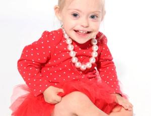 Девочка с синдромом Дауна стала успешной моделью