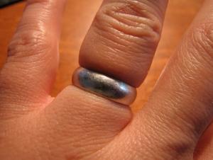Как снять с пальца кольцо? Секрет от работников скорой помощи