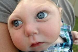 Малышу с редчайшим заболеванием исполнился 1 год