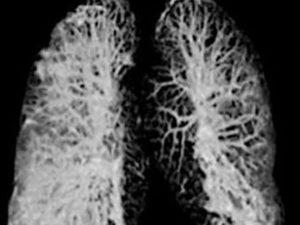 Простой способ избежать лёгочных осложнений при коронавирусе